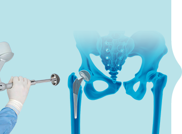 Mako Robotic-Arm Assisted Joint Replacement